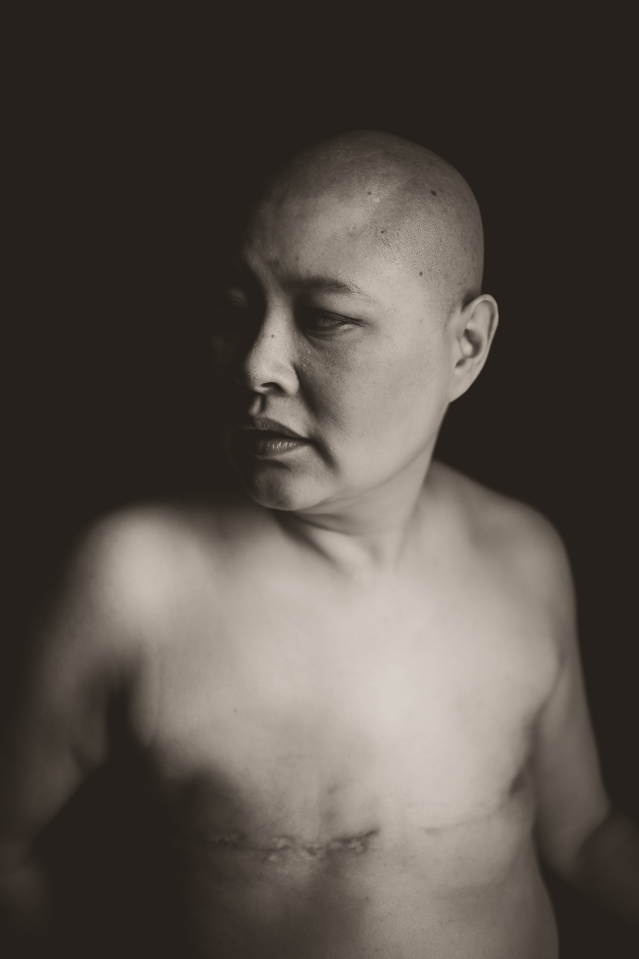 breast cancer photographer